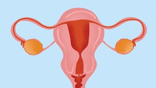 Let's talk about Polycystic Ovary Syndrome